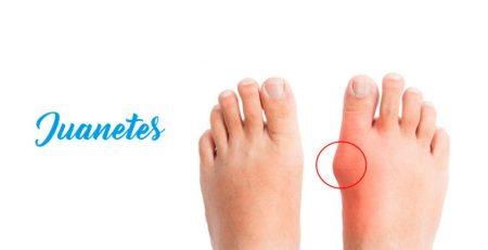 Juanetes en los pies